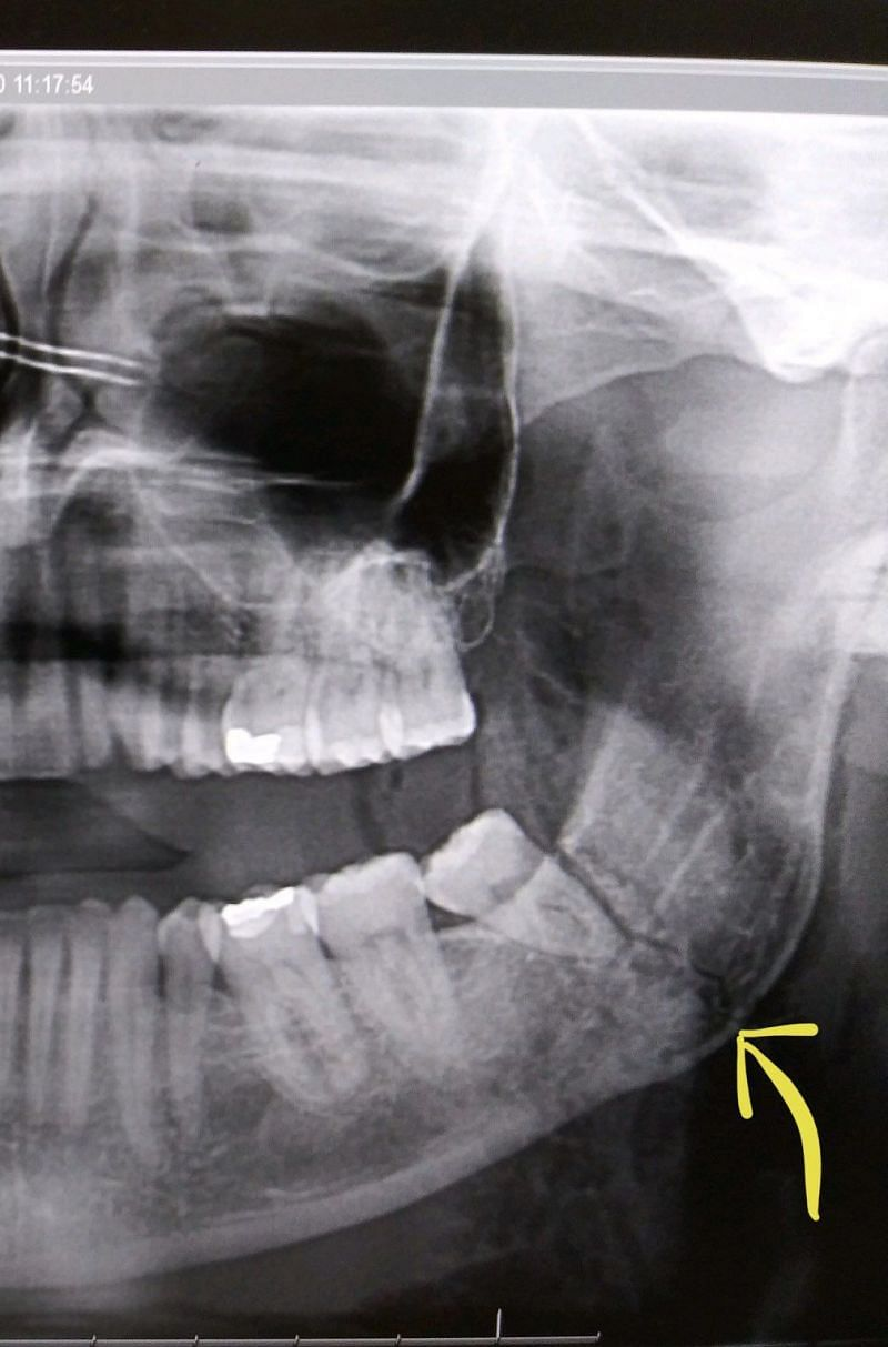 Finn Balor broke his jaw in two places as shown in the X-Ray above.