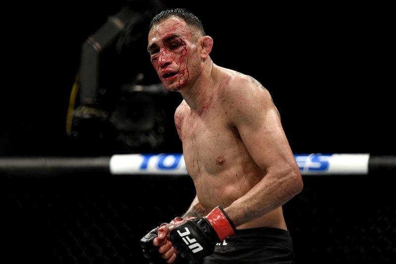 Tony Ferguson of the United States