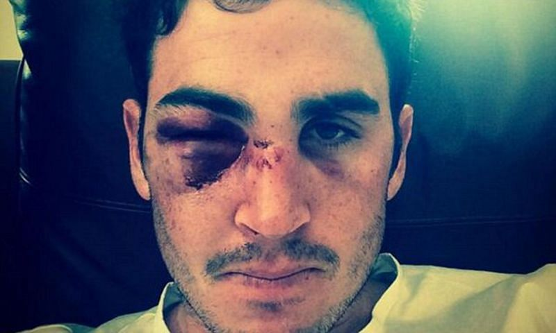 Craig Kieswetter sustained a major injury that forced him to retire from the game.
