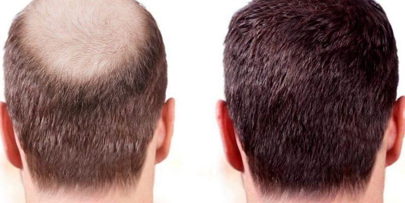 सर के बाल