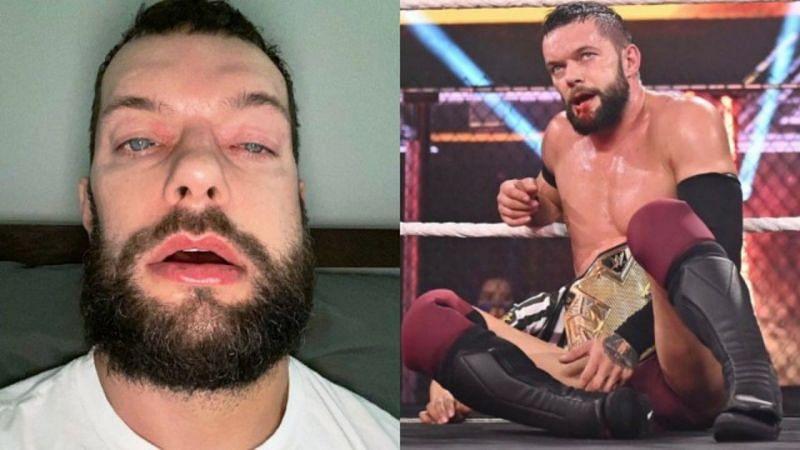 WWE NXT चैंपियन फिन बैलर