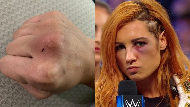 Nia Jax shared a picture of her fist after punching Becky Lynch
