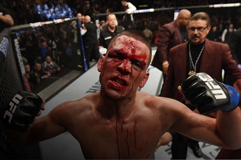 Nate Diaz posing for the camera after UFC 196.