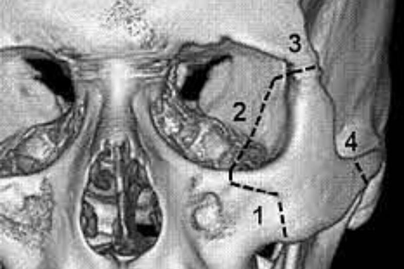 The four attachments of the zygomatic bone. (Image credits: CiteSeerX )