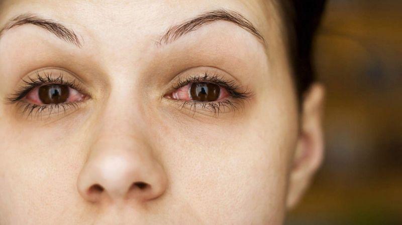 आँख आना एक बेहद आम घटना है और इसको लेकर परेशान होने की जरूरत नहीं है (फोटो: द इंडियन वायर)