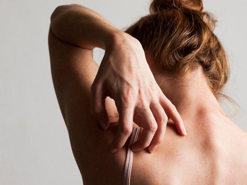 त्वचा शरीर का सबसे बड़ा अंग है। ये शरीर के सर से लेकर पैर के तलवों तक आपके शरीर को ढंककर रखता है। इसको होने वाली एक परेशानी बड़ी मुसीबत का कारण बन सकती है। (फोटो: Self.com)