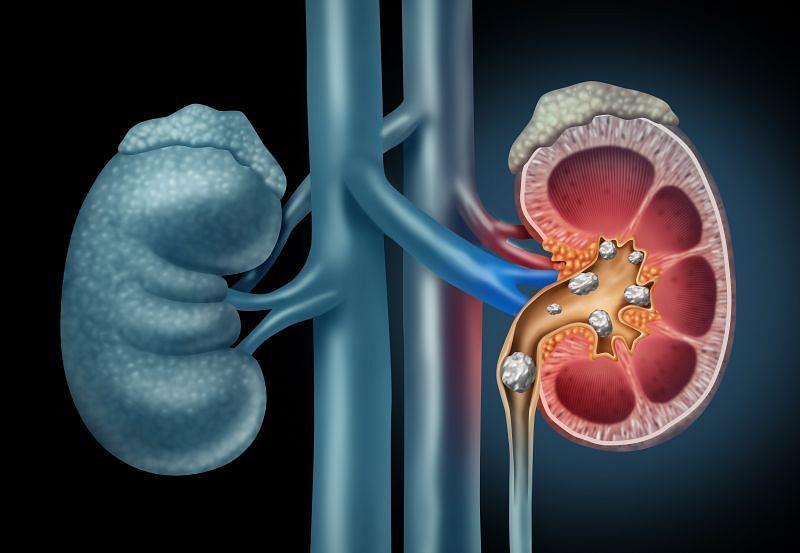 किडनी में स्टोन (Kidney Stone) होना आज कल के दौर में एक आम घटना है। इसके पीछे एक बड़ी वजह ये है कि हम सबको जो भी खाने से जुड़ी चीजें मिल रही हैं फिर चाहे वो सब्जी हो, चावल हो या फिर तेल, ये सभी मिलावट से भरपूर हैं। (फोटो: Health.Harvard.Edu)